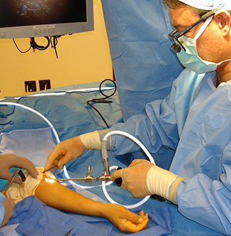 Hand Center Pronator